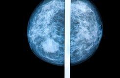 Mammography Stock Image