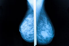 Mammography Royalty Free Stock Photos