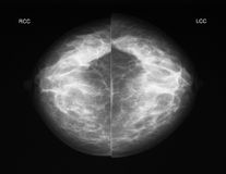 Mammography in CC projection. Left-right comparison of a normal mammogramm in cc projection (from top to bottom Stock Images