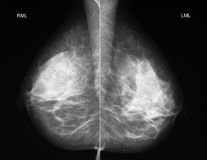 Mammography in mediolateral projection. Left-right comparison of a normal mammogramm in mediolateral projection Stock Photo