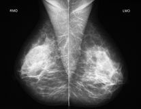 Mammography in oblique projection. Left-right comparison of a normal mammogramm in oblique projection Royalty Free Stock Photos