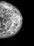 Mammography, x-ray of Breast Stock Images
