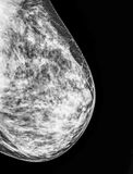 Mammography, x-ray of Breast Stock Photos