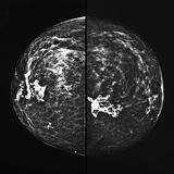 Mammography x ray. Mammography xray and benign calcifications within gland Royalty Free Stock Photography