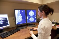Mammography test. Radiology technician examens mammography test Royalty Free Stock Image