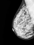 Mammography, x-ray of Breast Royalty Free Stock Images