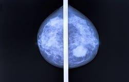 mamografía imagenes de archivo