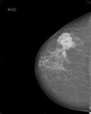 Mamografia Foto de Stock Royalty Free