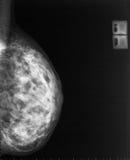 mamograma de la radiografía Fotografía de archivo