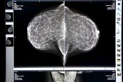 Mamograma de la radiografía Imagen de archivo libre de regalías