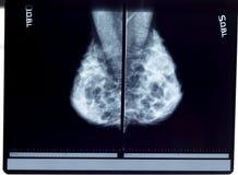 Mamograma de la radiografía fotos de archivo