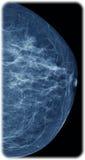 Mamography Imágenes de archivo libres de regalías