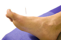 Man with acupuncture needle in foot Stock Photos