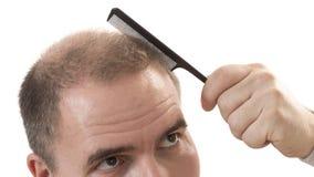 Man alopecia baldness hair loss isolated. Man alopecia baldness or hair loss - adult man hand holding comb on bald head isolated stock photography
