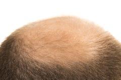 Man alopecia baldness hair loss isolated. Man alopecia baldness or hair loss - Bald head close up isolated stock images
