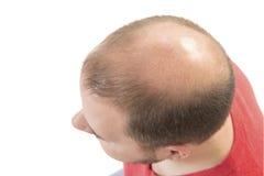 Man alopecia baldness hair loss isolated. Man alopecia baldness or hair loss - Bald head close up isolated royalty free stock photo