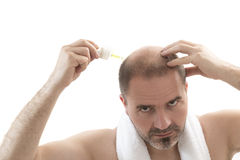 Man alopecia baldness hair loss isolated Royalty Free Stock Photos