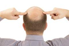 Man alopecia baldness hair loss isolated. Man alopecia baldness or hair loss - Close up head two hands isolated Royalty Free Stock Image