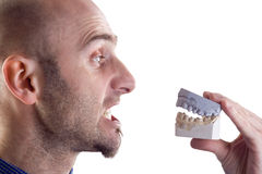 Free Man And Teeth Mold Stock Photography - 3655322