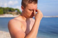 Man anseendet på stranden och att göra ont på grund av huvudvärk arkivfoton