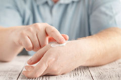 Man applying moisturizer cream on hands, dry skin. Dermatology,. Cold weather skin care concept Stock Photo