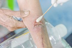 Man arm wound Royalty Free Stock Image