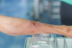 Man arm wound Royalty Free Stock Photography