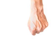 Man armen med blodåder på vit bakgrund, hälsovårdconcep Arkivfoto