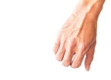 Man armen med blodåder på vit bakgrund, hälsovårdconcep Arkivbild