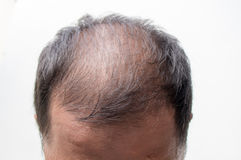 A man baldness. Middle-aged man concerned with hair loss stock image