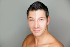 Man beauty skin compare Royalty Free Stock Image