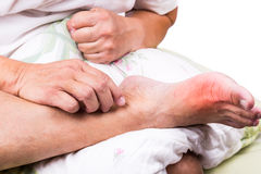 Man on bed embrace foot with painful swollen gout inflammation Royalty Free Stock Images