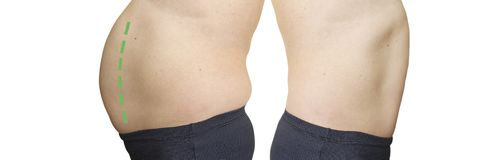 Man belly before and after weight loss overweight concept. Man belly before and after weight loss collage overweight concept stock image