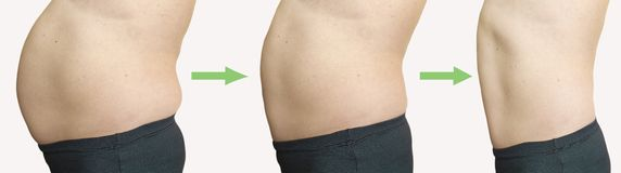 Man belly before and after weight loss overweight. Man belly before and after weight loss collage overweight stock image