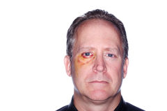 Man with a black eye. Headshot of a man with bruising around his eye from an injury stock photos