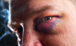 Man with black eye. Close-up of man with genuine black eye - focus on eye royalty free stock images