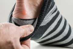 Man with a blister on his heel. Lifting down his sock to reveal the raw red patch of rubbed skin Royalty Free Stock Photos