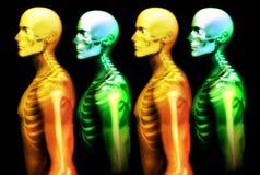 Man Bone Stock Photo