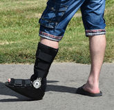 Man with broken leg Royalty Free Stock Photos