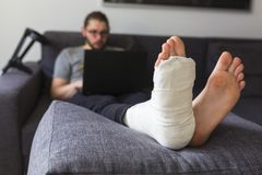 Man with a broken leg is surfing the internet. Young man with a broken leg is sitting on the sofa at home stock photography