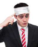 Man with bruised eyes and head Stock Photos