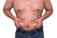 Man with a cellulitis on a stomach. Man with a cellulitis on a stomach Royalty Free Stock Photo