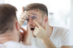 Free Man Checking Contact Lenses Stock Images - 144911634