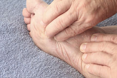 Man checking dry skin on foot Royalty Free Stock Images