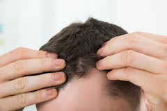 Man Checking Hairline At Home. Closeup of mid adult man checking hairline at home royalty free stock image