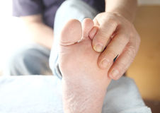 Dry skin on the foot of a man Stock Images