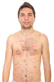 Man with chickenpox Stock Photo