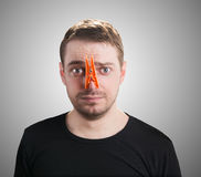 Man with clothespin on his nose. Stock Photos