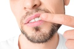 Man with cold sore touching lips. On white background, closeup Royalty Free Stock Images