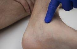 vibrații de la varicoseza eliminate vene varicoase cu